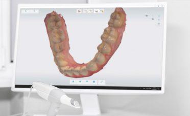 Dijitalleşen diş hekimliği, tedavilere kalite ve konfor getiriyor