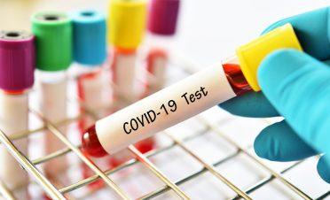 Türkiye'de coronavirüs test kiti geliştiren firmalar